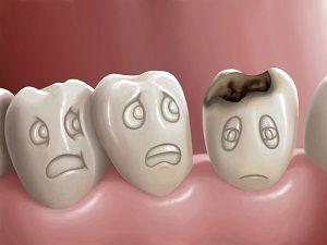 Caria Dentară