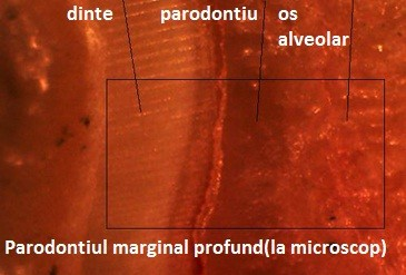 parodontiu_marginal_profund_la_microscop