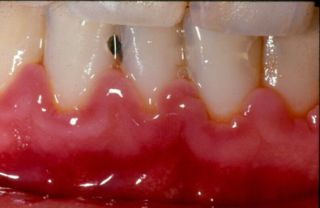 Pungi parodontale false